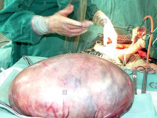 好孕时光27期:原以为生了,结果是囊肿