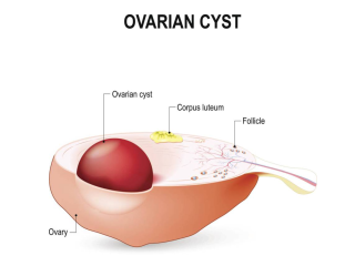 好孕时光27期:到底卵巢囊肿是什么?