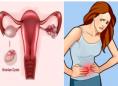 好孕时光27期:卵巢囊肿有什么危害的?