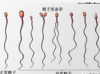 乙肝女性能不能做试管婴儿?看看乙肝五项对照表就知道