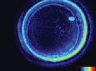 胚胎里如何观察纺锤体的?