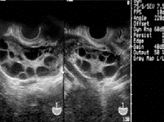 美国试管婴儿提高促排卵结果的细节