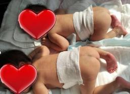 【龙凤胎/双胞胎】两次胎停,终于升级成为双胞胎母亲!下