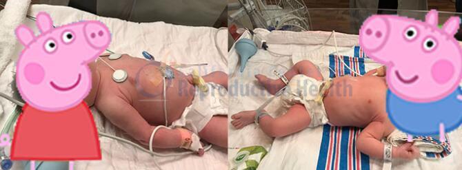 美国CCRH再添龙凤双胞胎,单身妈妈的幸孕之旅